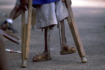 Vaccination has led to a worldwide plunge in polio infections, but cases are still occurring in poorer countries. PIC: World Health Organization